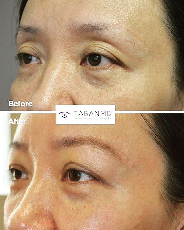 PPER EYELID-BROW FILLER INJECTION to treat fat loss and excess upper eyelid skin folds in an Asian woman, giving more youthful eyes without surgery. Results last 1-2 years. Minimal downtime. (This patient could also use filler under eyes.)