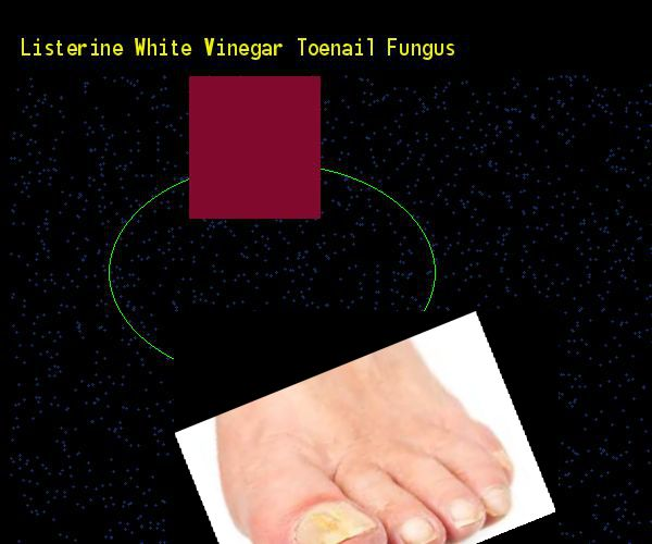 Listerine white vinegar toenail fungus - Nail Fungus Remedy. You have nothing to lose! Visit Site Now