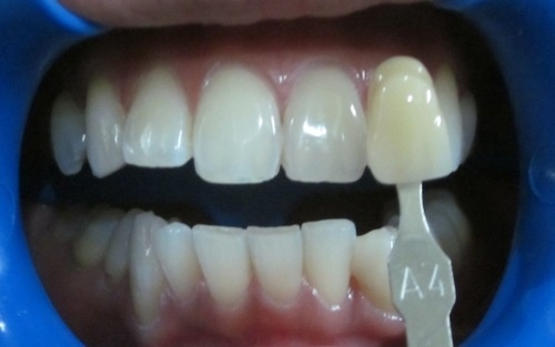 Orthodontic treatment can be undertaken at any age and at any stage but for the most effective and efficient results on should get these orthodontic treatments at an early age.