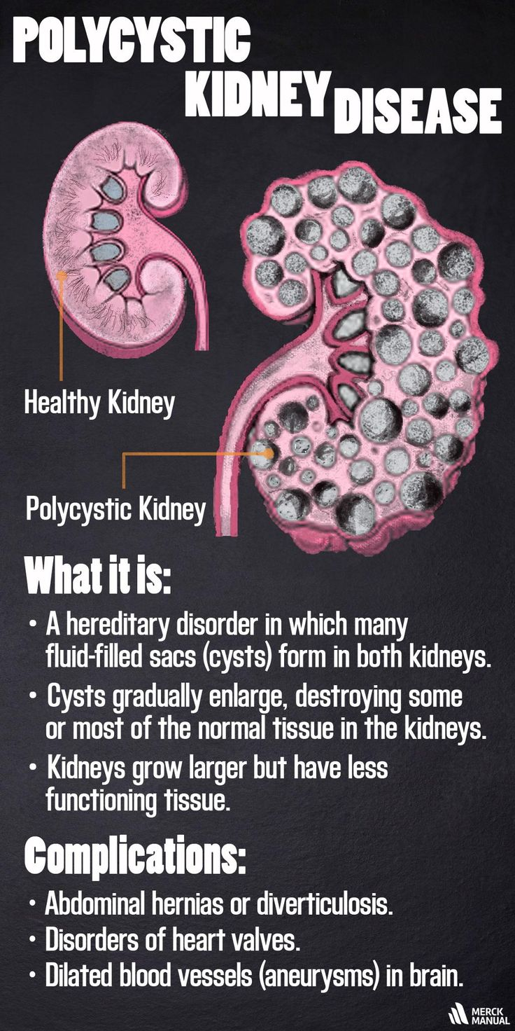 Learn more about the causes, symptoms, diagnosis & treatment of Polycystic Kidney Disease.
