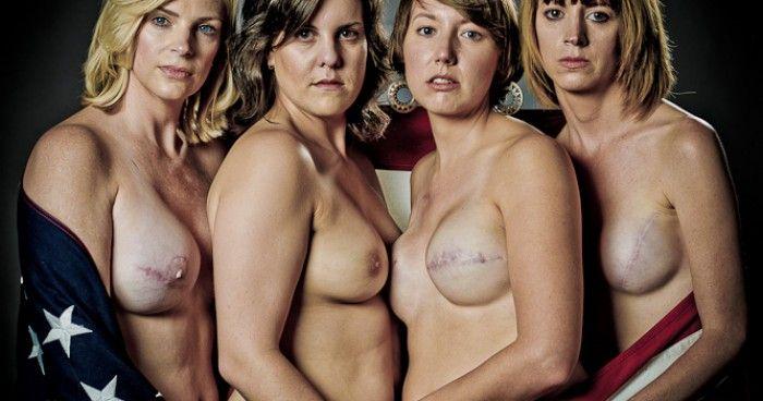 The SCAR Project -  28 Θαρραλέες, όμορφες γυναίκες, με μαστεκτομή.