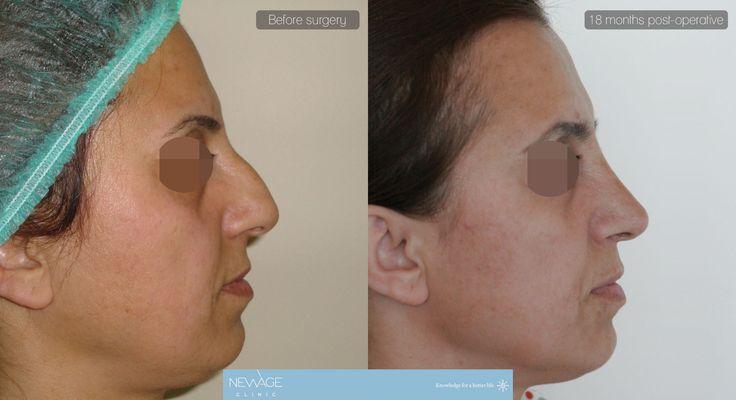 Die Patientin hatte eine Nasenkorrektur (Rhinoplastik) Op mit Dr Ozge Ergun von der Newage Klinik Istanbul #Rhinoplastik #Nasenkorrektur #Ästhetische #ÄsthetischeChirurgie