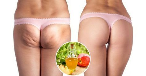 Se stai cercando di sbarazzarti della cellulite, l'ingrediente naturale che ti descriviamo in questo articolo farà al caso tuo.