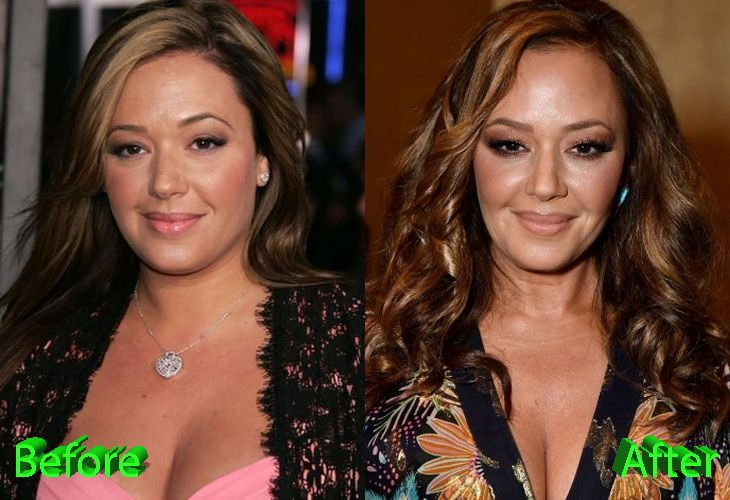 Leah Remini Before and After Plastic Surgery | Leah remini, Plastic surgery,  Celebrity plastic surgery