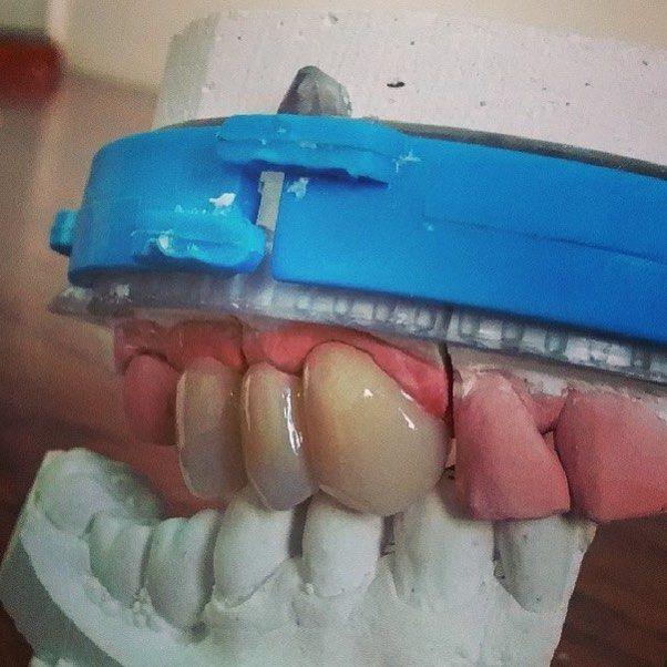 Uma ótima semana a todos.  Cerômero #epricord Agende por email uma visita em seu consultório. Saquarema Bacaxá Araruama e região.  trabalhamos com diversos tipos de próteses. flexíveis acrílicas caracterizada no sistema STG PPr Com grampo estético  laboratórioleandroosorio@gmail.com #bomdia #saquarema #araruama #denist #dental #dentista #dentsply #dentures #dentalart #dentallab #dentistry #denstistry #dentalgram #dentallife #Dienteisosit #dentallabtechs #DentalWitakril #dentallaboratory…