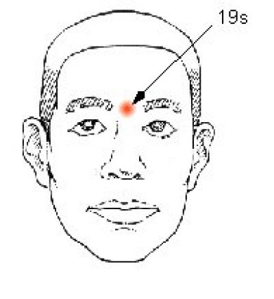 Acupressure Therapy for Thyroid Disorders