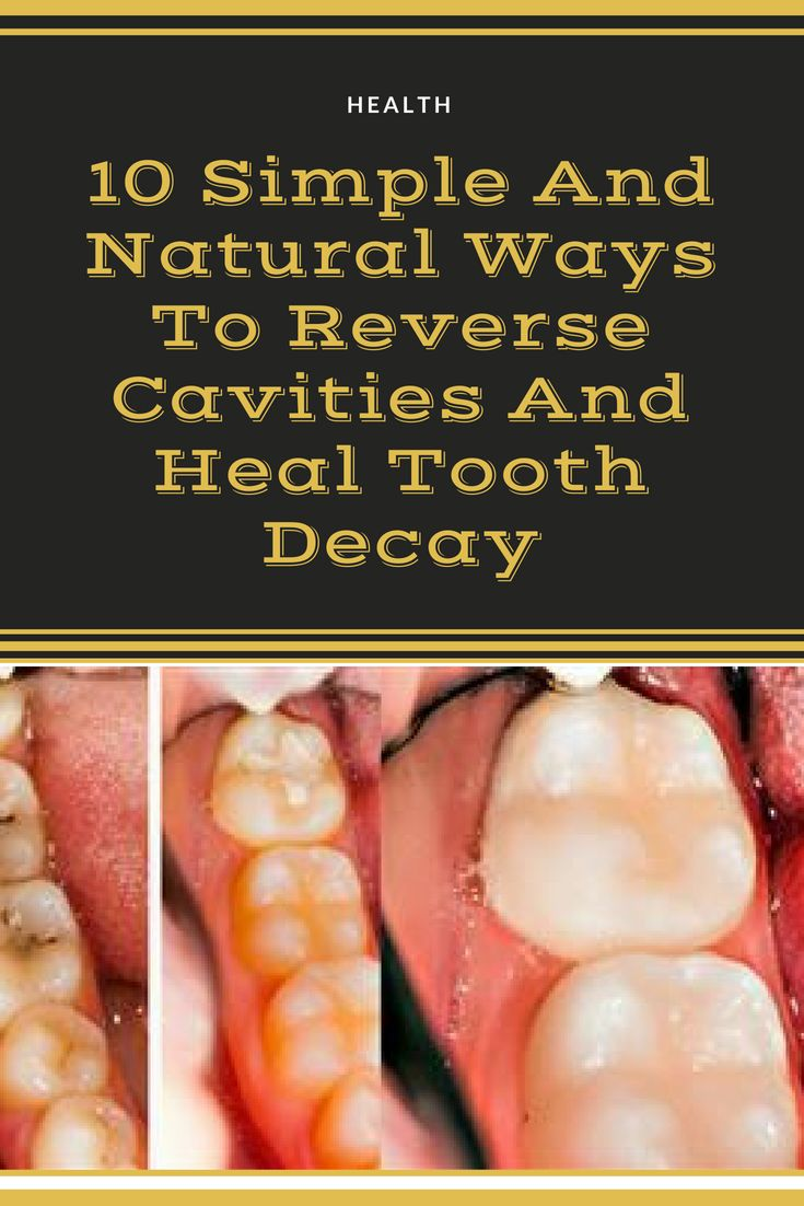 how to reverse cavities and heal tooth decay