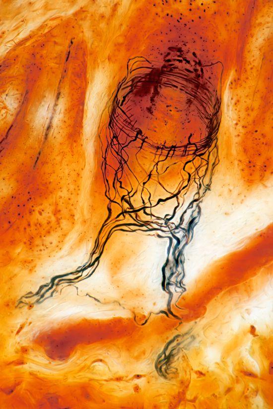 Sensory nerve ending of hair follicle  -Spike Walker