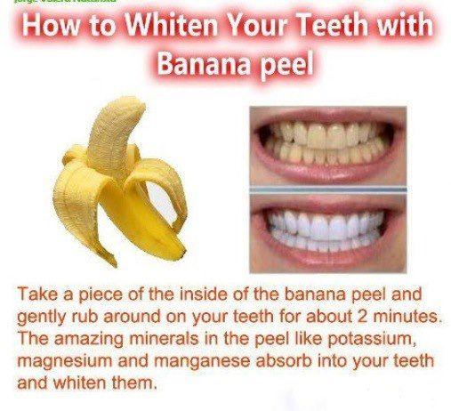 banana teeth whitening