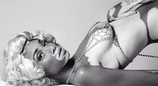 La inspiradora historia de Chantelle Brown-Young, la modelo con vitiligo