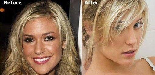 Celebrity breast implant cc