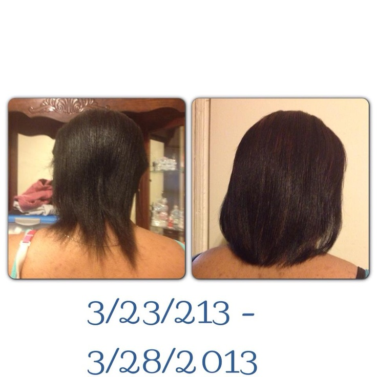 Hairfinity before and after hair care Pinterest