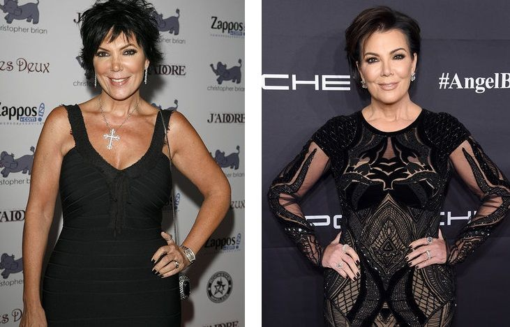 Kris Jenner, the mother of the Kardashian family, also did not stand aside and went through several plastic surgeries (nose, eyes, chin, chest, abdomen), spending on them about 70 thousand dollars. By the way, one of the operations even got into a series of reality shows, and the result of plastics deserves praise: 61-year-old kris looks great for his years!