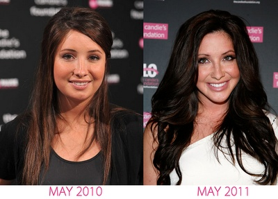 Plastic Surgery Before And After: Octomom Before And After