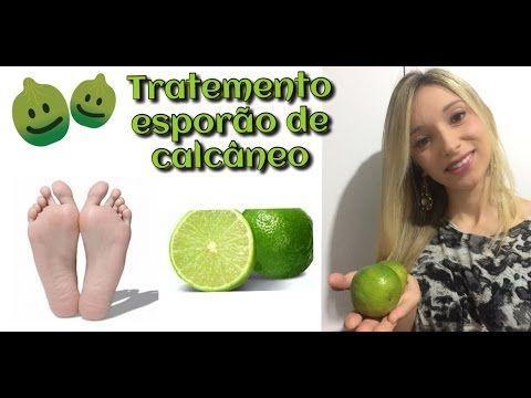 Tratamento caseiro para esporão de calcâneo utilizando a casca do limão - YouTube