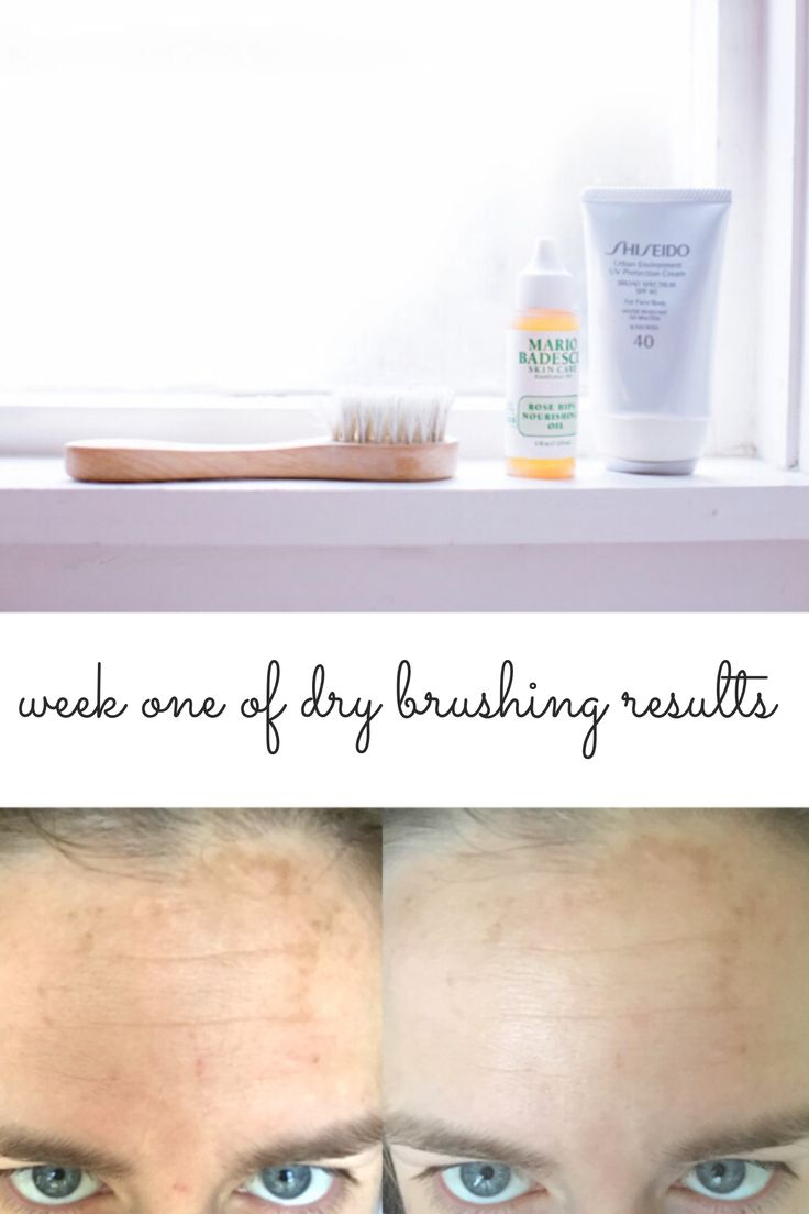 Week One Results of Dry Brushing my face and rose hip seed oil benefits.   How to dry brush your face.  Skincare.  Forehead sun damage and wrinkles.