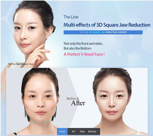Focusing on the 3D jaw reduction, the square and protruding jaw are shaved off to form a smoother and elegant facial contour. The curves in the face will never look so slender and in place. The Line Plastic Surgery Clinic is providing an exclusive offer on plastic surgeries, for further information, please send your inquires at info@thelineclinic.com