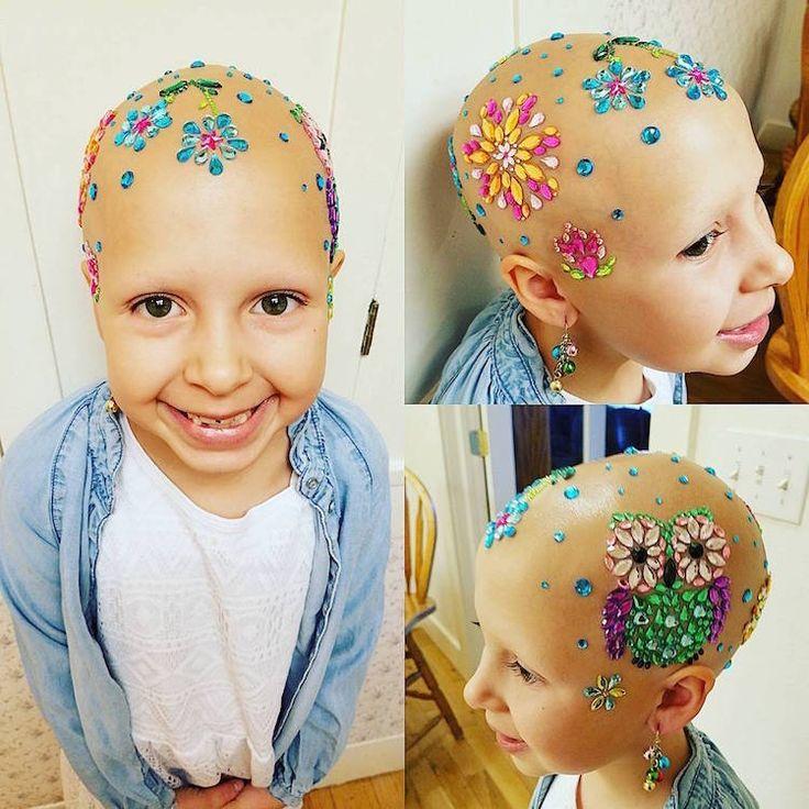 Atteinte d'une maladie, elle transforme sa chute de cheveux en oeuvre d'art #culturepub