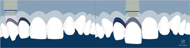 """Sometime better 1 implant with a cantilever than 2 implants- 5 Scientific Publications About Implant Dentistry You Should Read With """"Caution""""."""