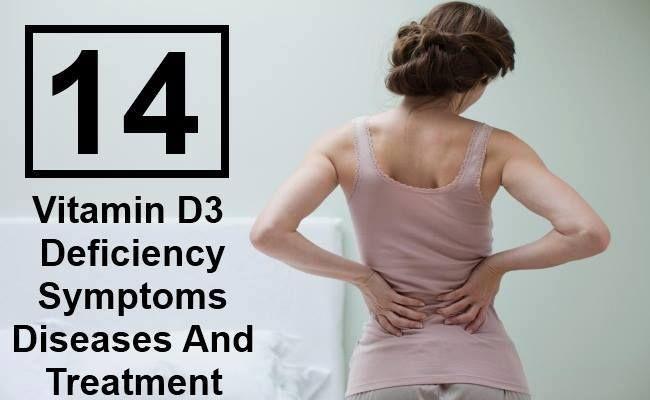 14 Vitamin D3 Deficiency Symptoms Diseases And Treatment