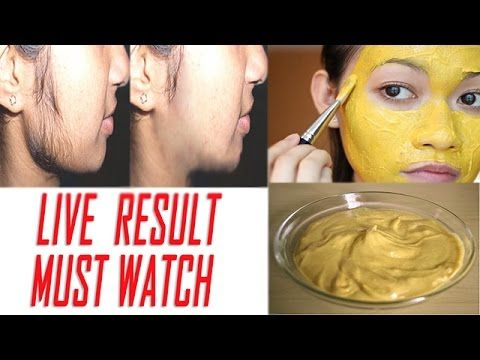 Remove facial hair in just 12 minutes in hindi || How to remove unwanted hair permanently at home || - YouTube