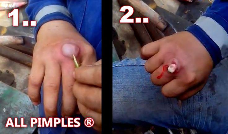 how to get veins to pop in your hands
