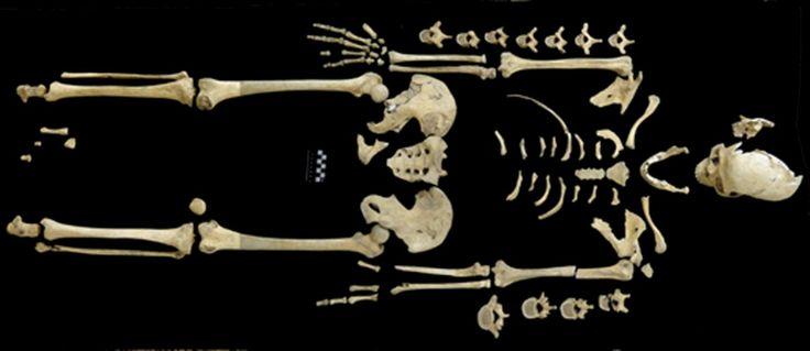O mais antigo caso de leucemia está marcado num esqueleto com 7000 anos