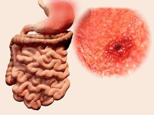 ulcere-gastrique-500x375