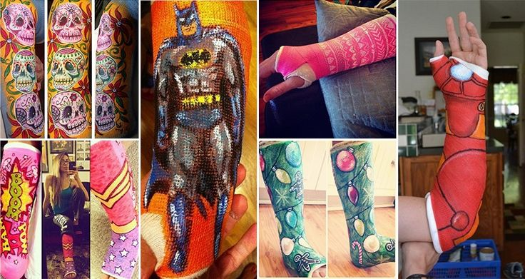 16 People Making The Best Out Of A Bad Situation With Their Casts