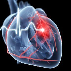 infarto, ataque cardiaco, ataque al corazon, infarto agudo miocardio, infarto - Science Photo Library | Getty Images