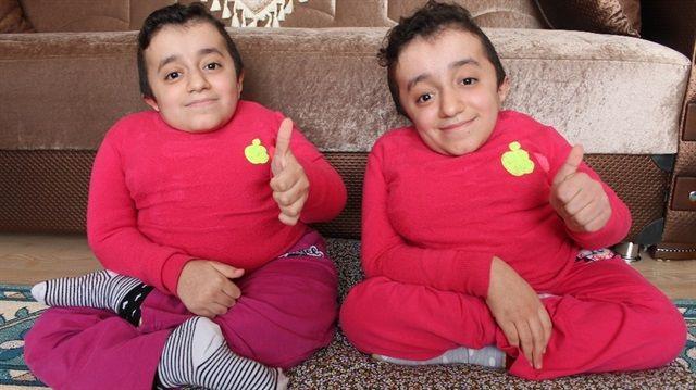Cam kemik hastası ikizler: Birinin kemiği kırılınca diğeri de hissediyor