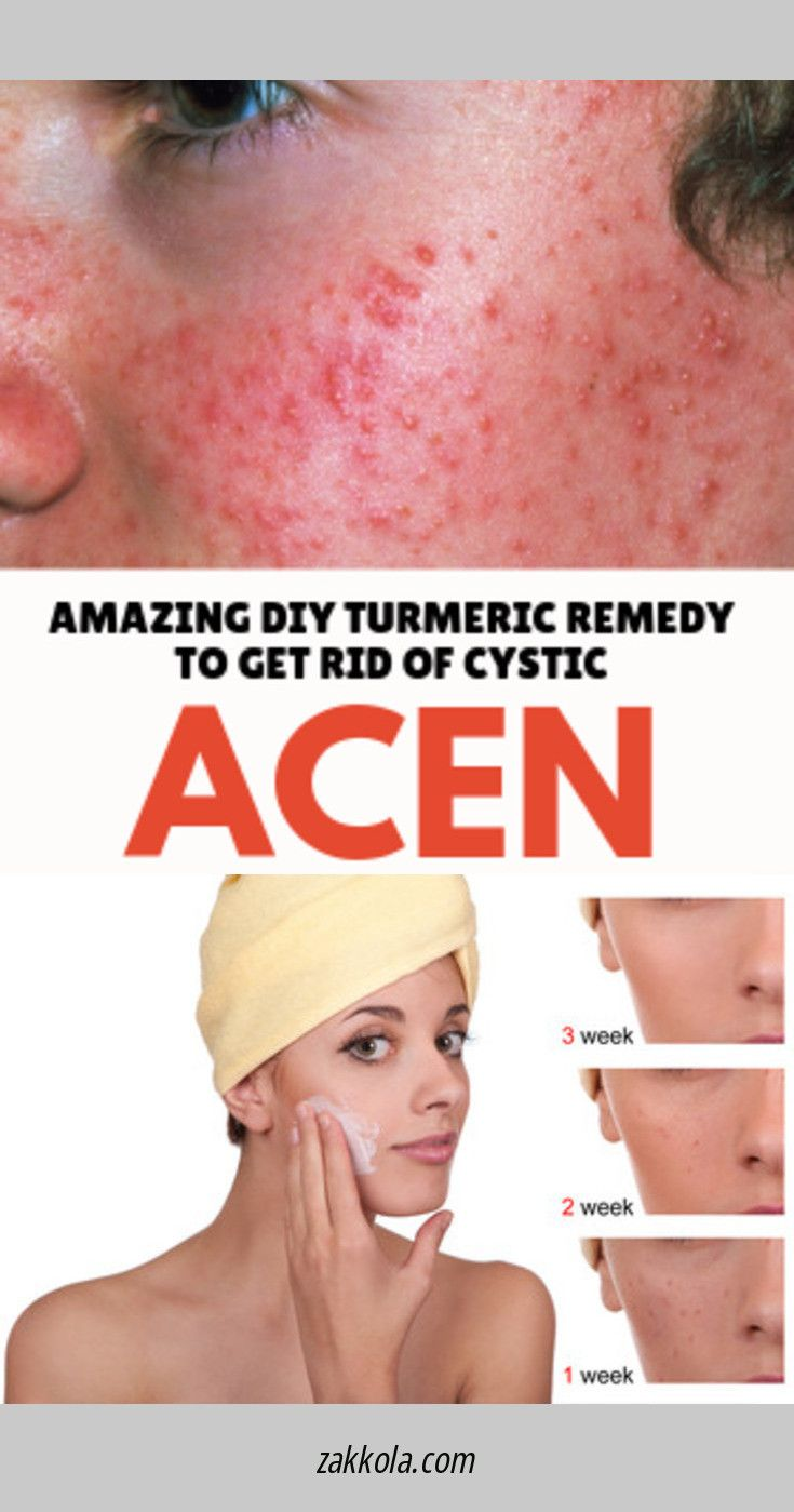 b6c36771c6b72da19e5cab56d6d06db4 - How To Get Rid Of Cystic Acne In A Week
