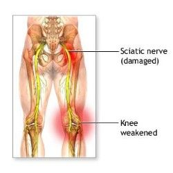 how to fix sciatic nerve at home