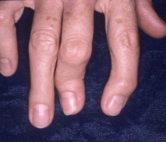 Psoriatic Arthritis in fingers
