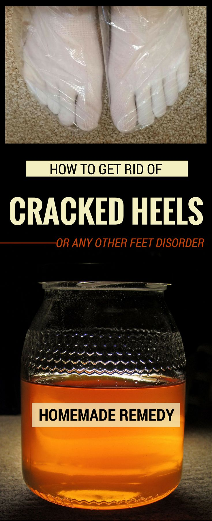 How To Get Rid Of Cracked Heels Or Any Other Feet Disorder? - BeautyHealther.org