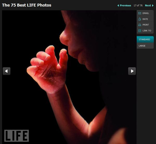 17 week old womb baby - The 75 Best LIFE Photos - Lennart Nilsson
