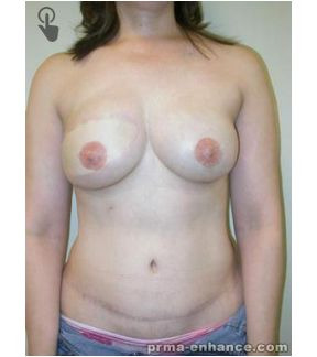Weight loss after breast cancer