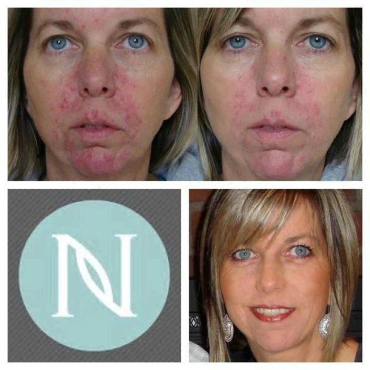 Skin care...Turning Heads! Real Results for Women & Men in 7 to 10 Days!  Ask me how to get it for FREE! http://amybrunnquell.nerium.com