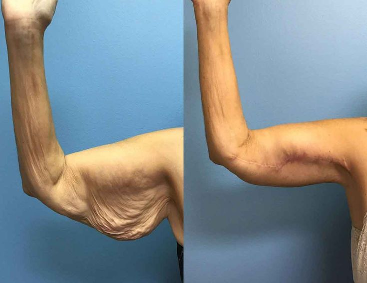 Upper arm liposuction 9 – Liposuction before and after