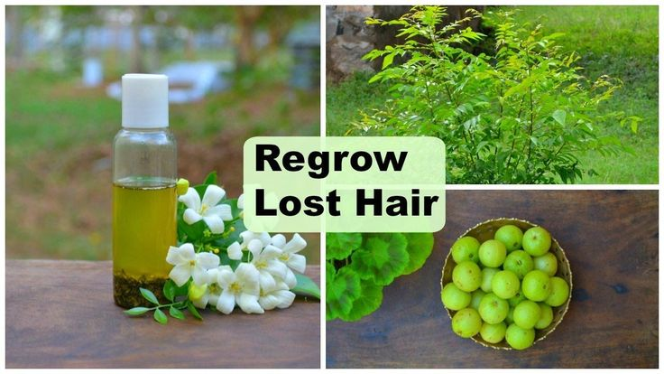 Regrow Lost Hair Naturally on Bald Spots & Forehead Fast For Men & Women   Herbal Hair Regrowth Oil - YouTube http://tophairsgrowthtip.com/how-to-grow-natural-hair-fast-and-healthy/hair-growth-products-that-work/nutrafol-hair-capsules-review/