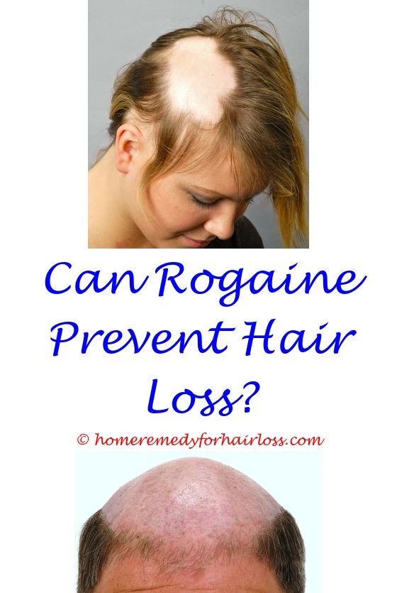 11 best Hair Loss Pills images on Pinterest