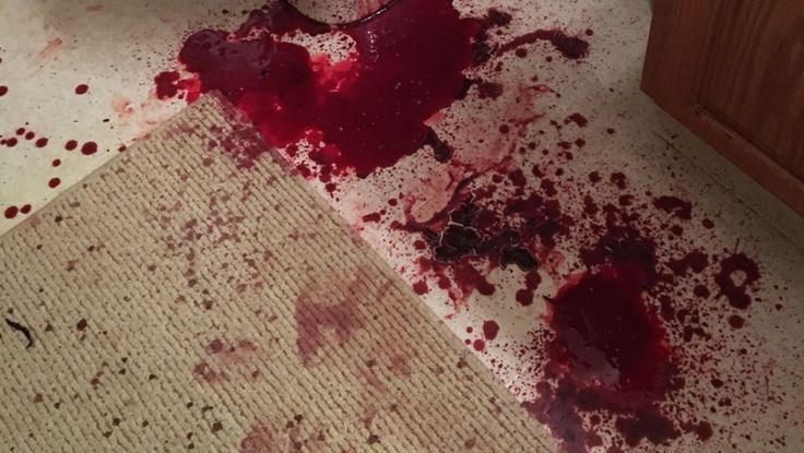 bloody mess | OC: Seven | Pinterest | Blood, Oc and Red ...