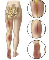Perform this to help with sciatica, leg pain, hip pain, and low back pain.  http://www.bnchiro.com/sciatic-nerve-floss/