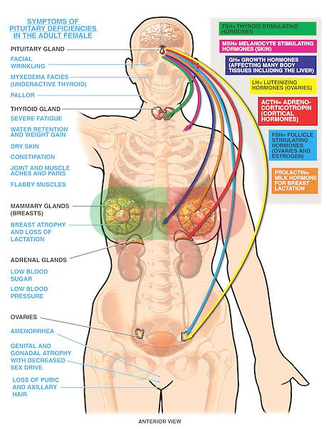 Functions of the pituitary gland and resulting symptoms due to pituitary deficiencies (hypopituitarism) in the female. Highlights the glands and organs in the body influenced by the pitiutary gland, including the thyroid gland, mammary glands, adrenal (suprarenal) glands and ovaries. Color-coded arrows link the pituitary to target organs, indicating the hormones transmitted to each organ. Labeled hormones include TSH, MSH, GH, LH, ACTH, FSH and prolactin.
