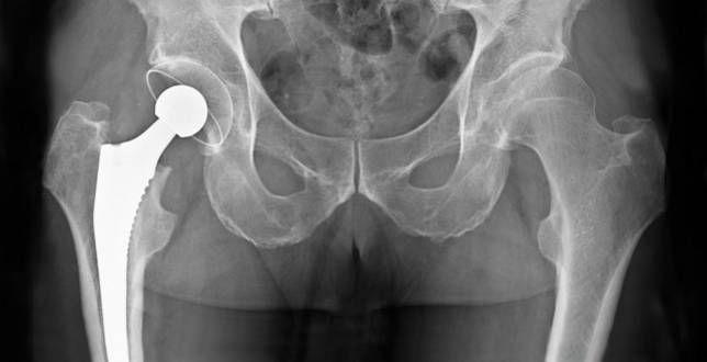 Tecnología para prótesis de cadera llegó a Uruguay