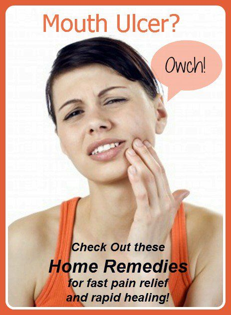 my home remedies have been tested by me to establish how effective they are at treating mouth ulcers