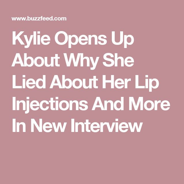 Kylie Opens Up About Why She Lied About Her Lip Injections And More In New Interview