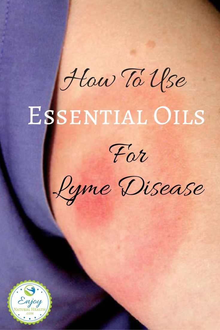 If you or someone you love suffer with Lyme disease, you owe it to yourself to learn how to use essential oils to reduce symptoms and treat this…