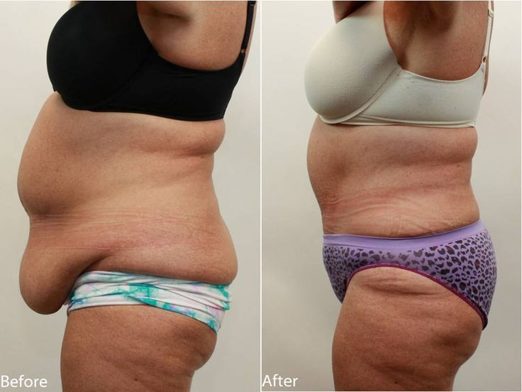 how to lose belly fat after tummy tuck