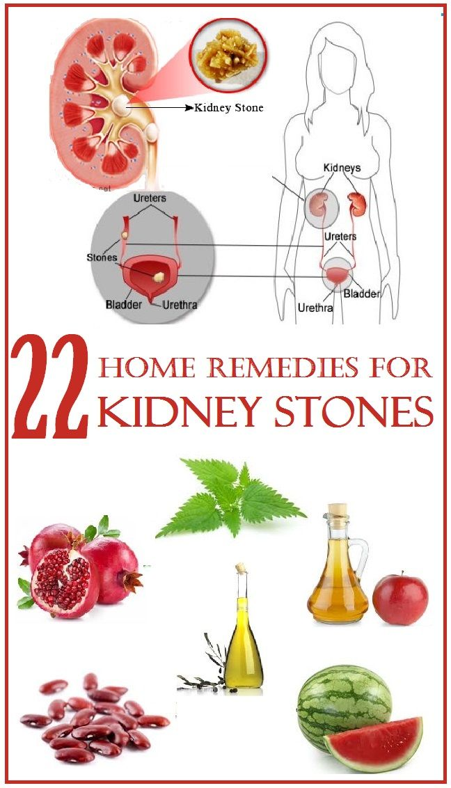 home remedies for kidney stones essay Kidney stone disease, also known as urolithiasis, is when a solid piece of material (kidney stone) occurs in the urinary tract kidney stones typically form in the kidney and leave the body in the urine stream.